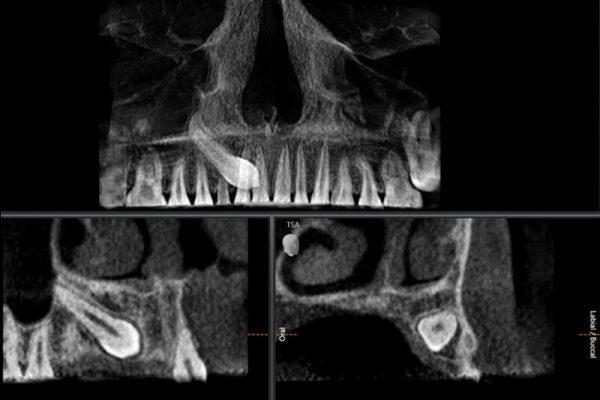 Kieferchirurgie Rhede